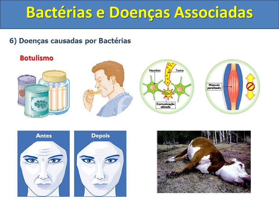 6) Doenças causadas por BactériasBotulismo Bactérias e Doenças Associadas