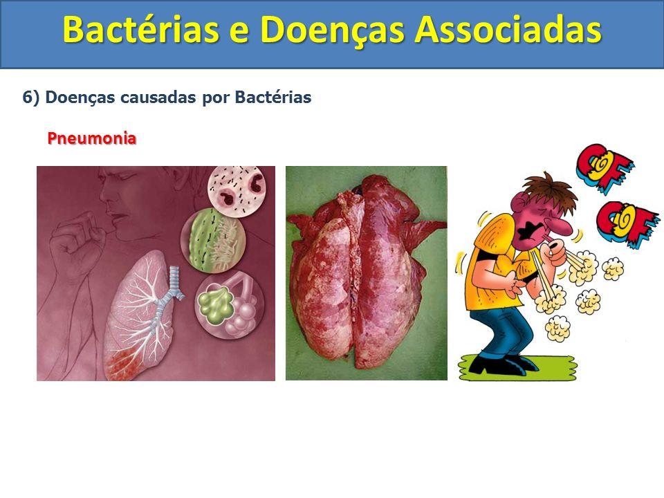 6) Doenças causadas por BactériasPneumonia Bactérias e Doenças Associadas