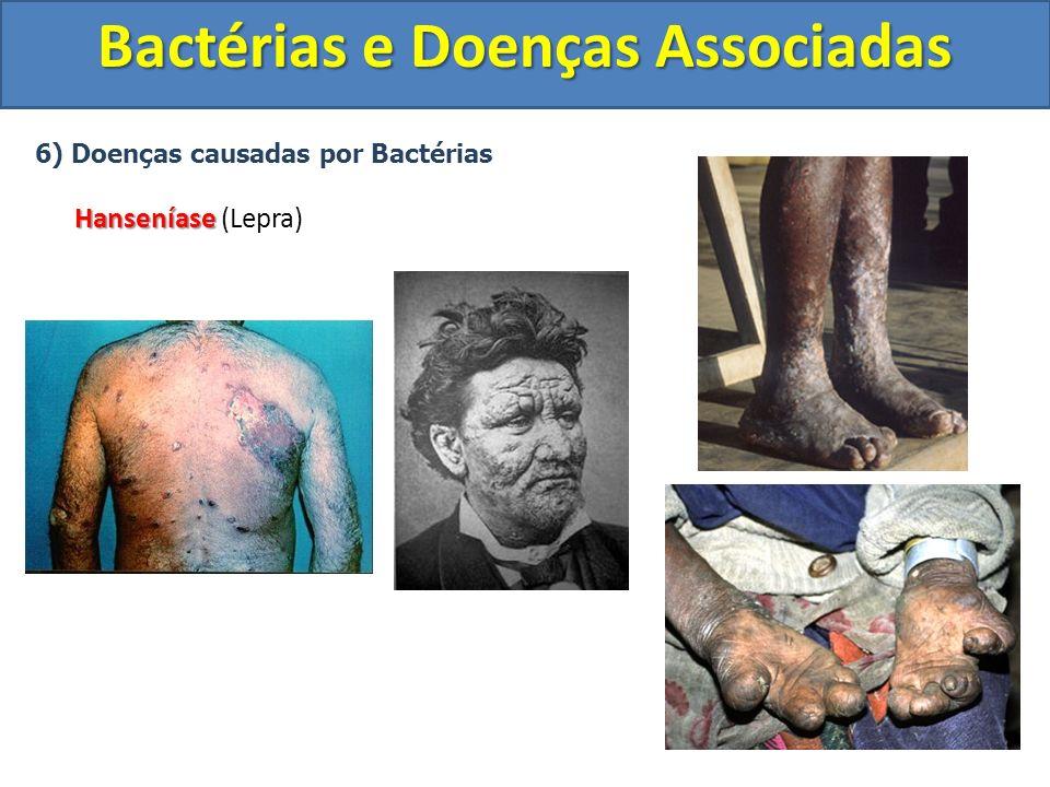 6) Doenças causadas por Bactérias Hanseníase Hanseníase (Lepra) Bactérias e Doenças Associadas