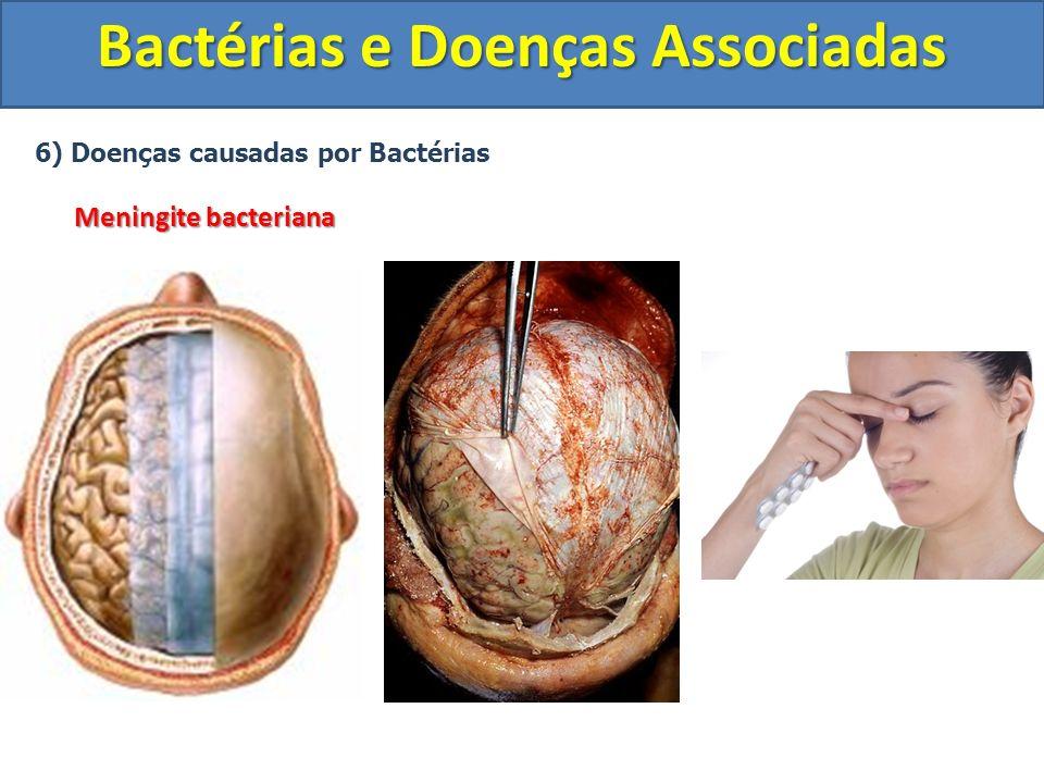 6) Doenças causadas por Bactérias Meningite bacteriana Bactérias e Doenças Associadas