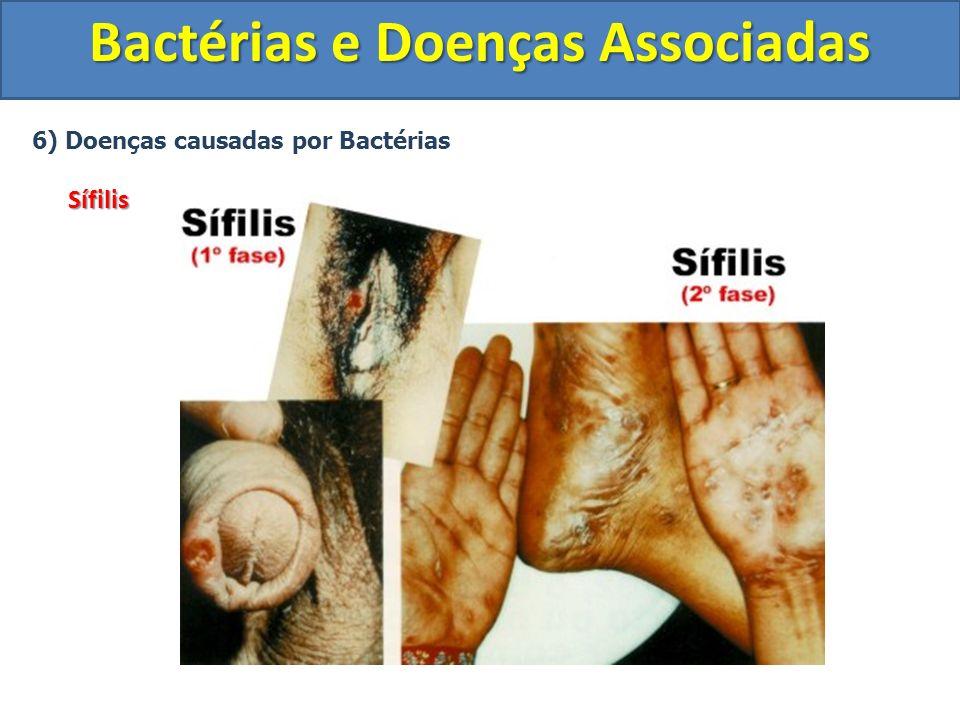 6) Doenças causadas por BactériasSífilis Bactérias e Doenças Associadas