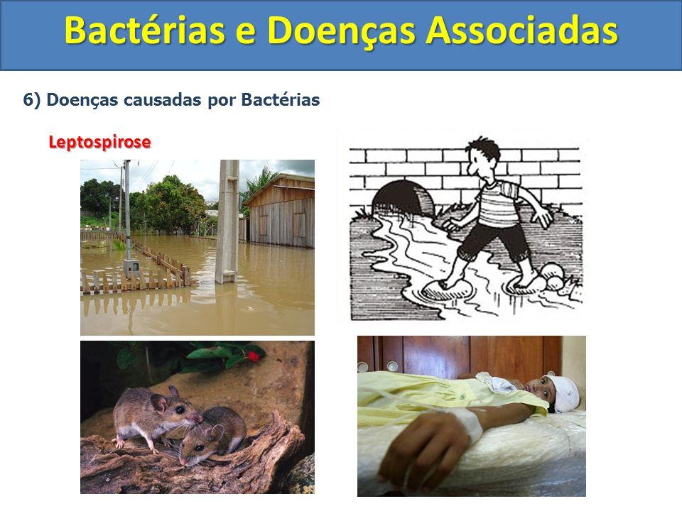 6) Doenças causadas por BactériasLeptospirose Bactérias e Doenças Associadas