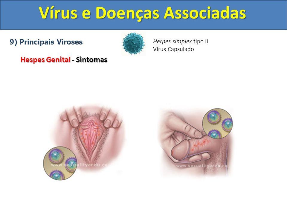 Vírus e Doenças Associadas 9) Principais Viroses Hespes Genital - Sintomas Herpes simplex tipo II Vírus Capsulado