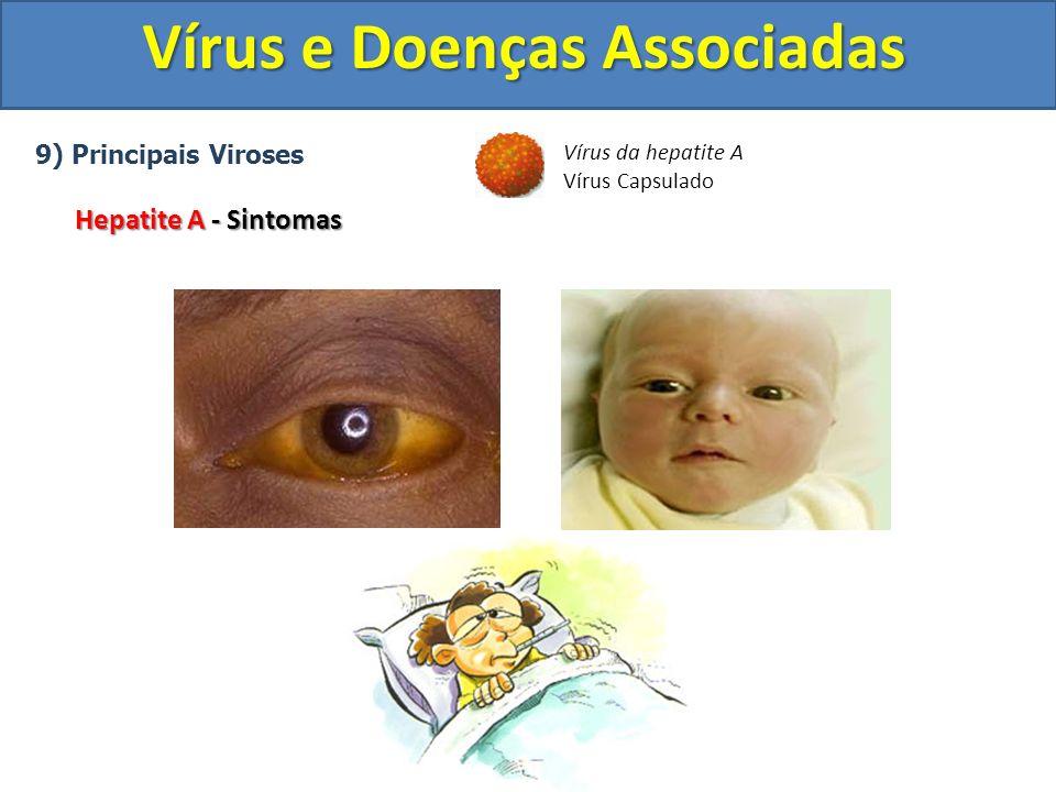 Vírus e Doenças Associadas 9) Principais Viroses Hepatite A - Sintomas Vírus da hepatite A Vírus Capsulado