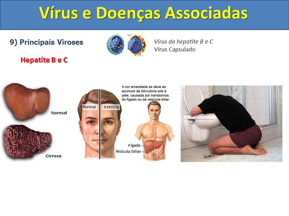 Vírus e Doenças Associadas 9) Principais Viroses Hepatite B e C Vírus da hepatite B e C Vírus Capsulado