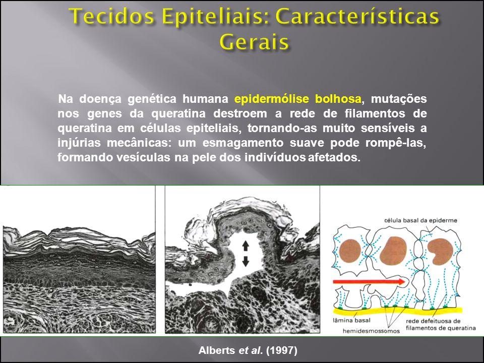 Na doença genética humana epidermólise bolhosa, mutações nos genes da queratina destroem a rede de filamentos de queratina em células epiteliais, torn