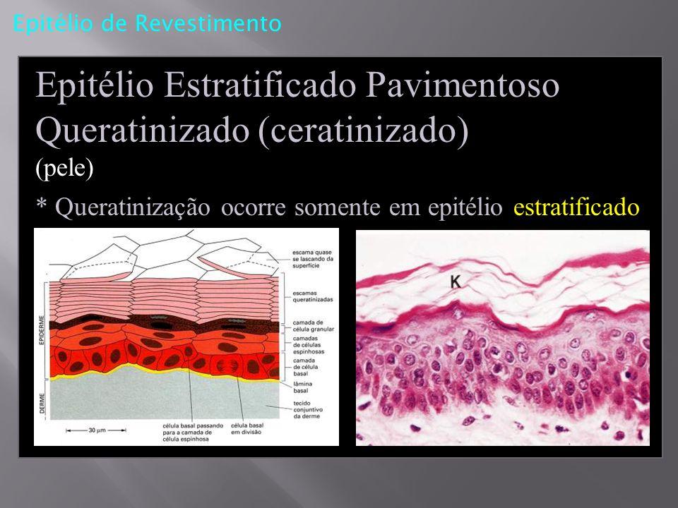 Epitélio de Revestimento Epitélio Estratificado Pavimentoso Queratinizado (ceratinizado) (pele) * Queratinização ocorre somente em epitélio estratific