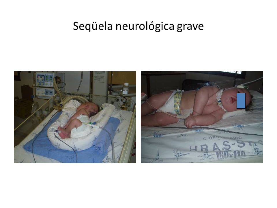 Seqüela neurológica grave