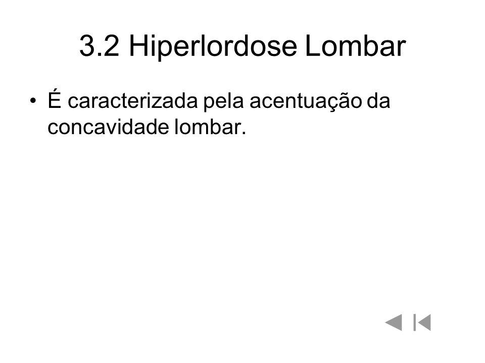 3.2 Hiperlordose Lombar É caracterizada pela acentuação da concavidade lombar.