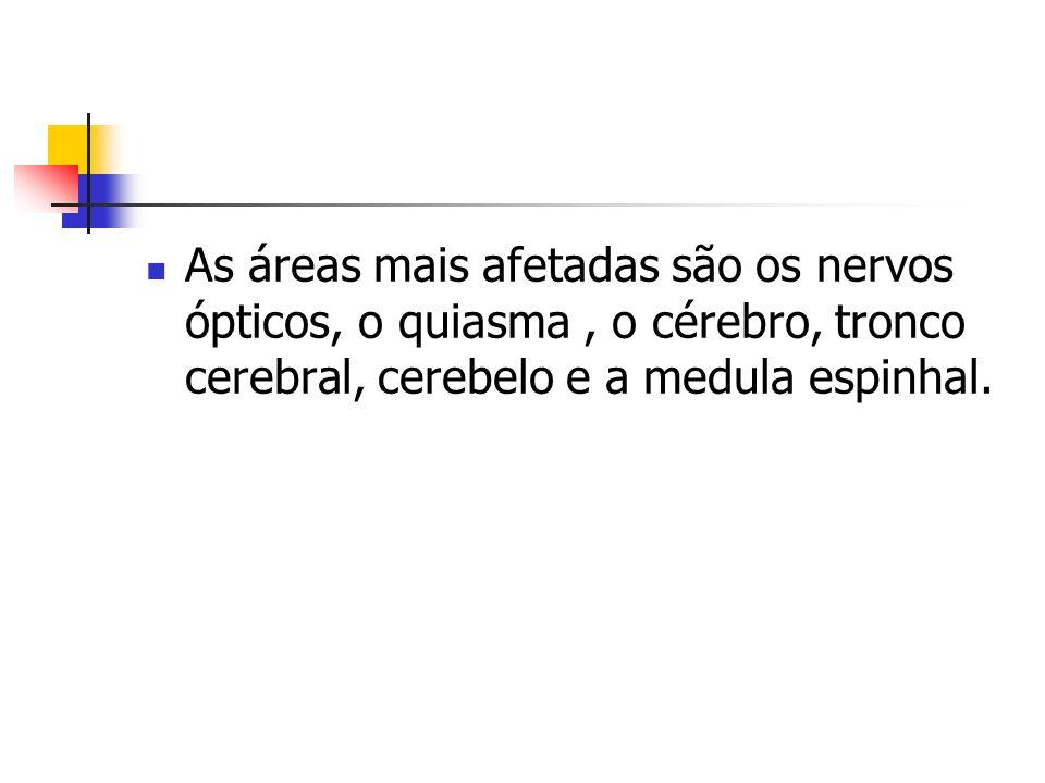 As áreas mais afetadas são os nervos ópticos, o quiasma, o cérebro, tronco cerebral, cerebelo e a medula espinhal.