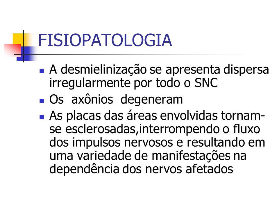 FISIOPATOLOGIA A desmielinização se apresenta dispersa irregularmente por todo o SNC Os axônios degeneram As placas das áreas envolvidas tornam- se es