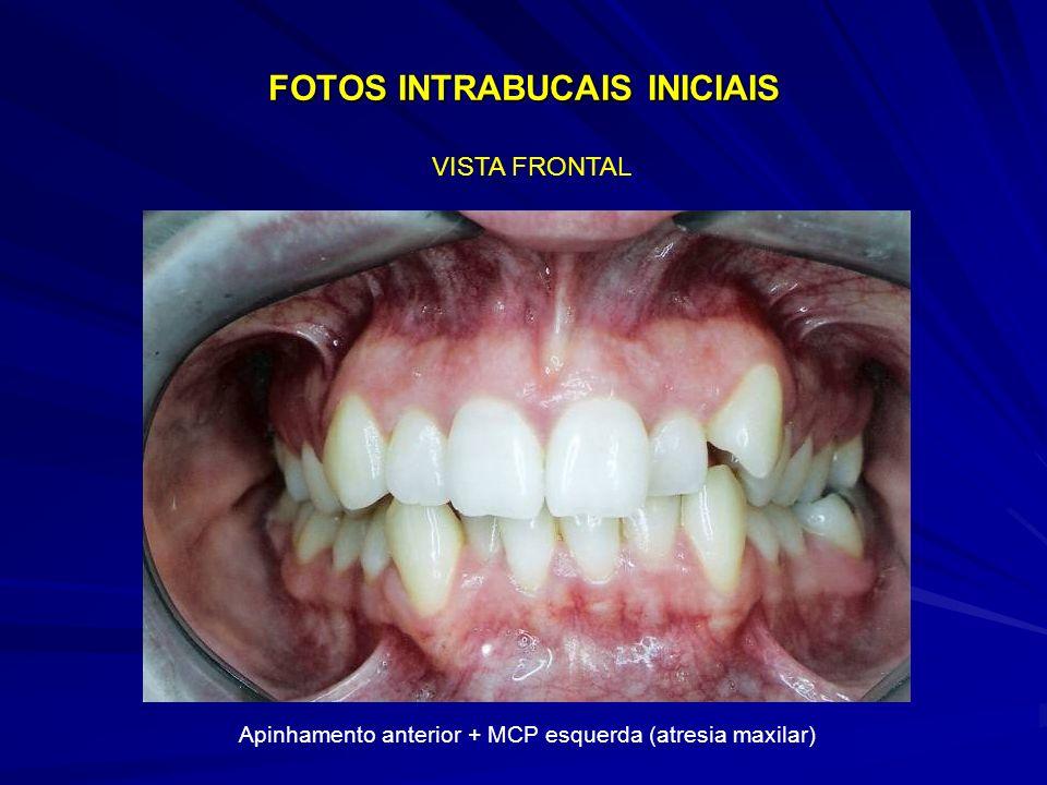 FOTOS INTRABUCAIS INICIAIS VISTA FRONTAL Apinhamento anterior + MCP esquerda (atresia maxilar)