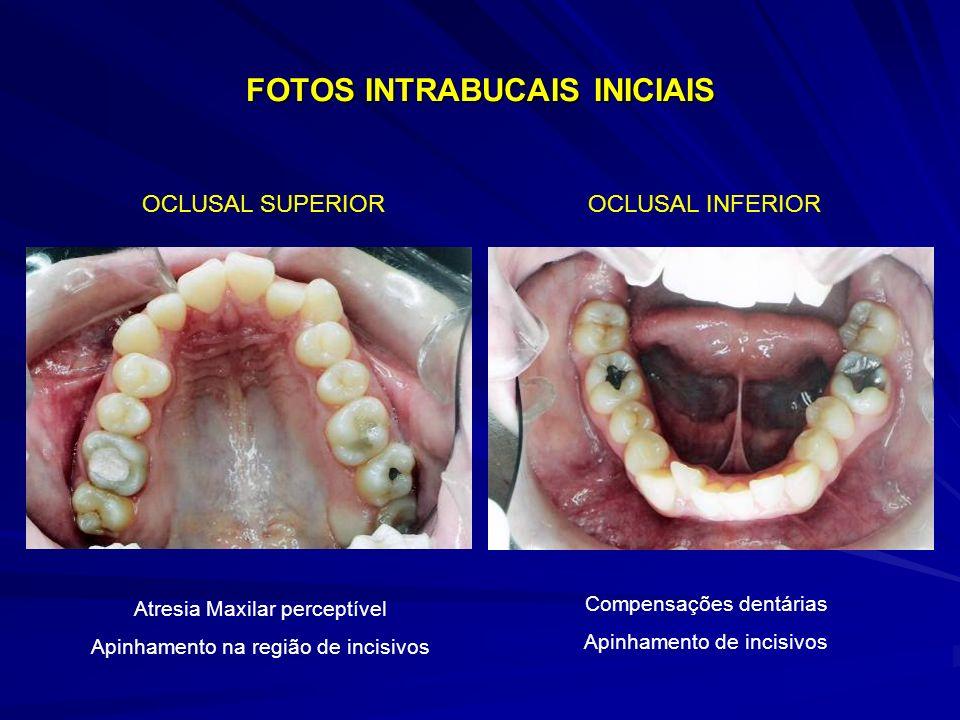 FOTOS INTRABUCAIS INICIAIS OCLUSAL SUPERIOROCLUSAL INFERIOR Atresia Maxilar perceptível Apinhamento na região de incisivos Compensações dentárias Apin