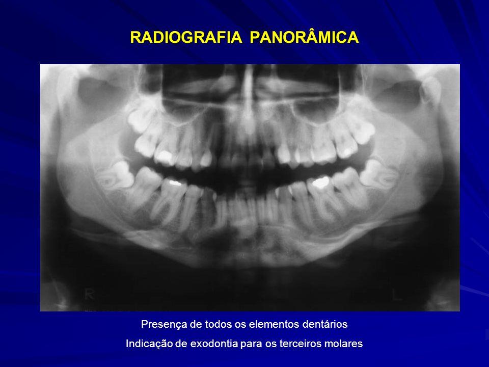 RADIOGRAFIA PANORÂMICA Presença de todos os elementos dentários Indicação de exodontia para os terceiros molares