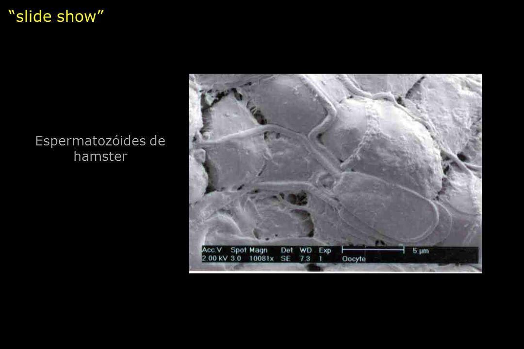 slide show Espermatozóides de hamster