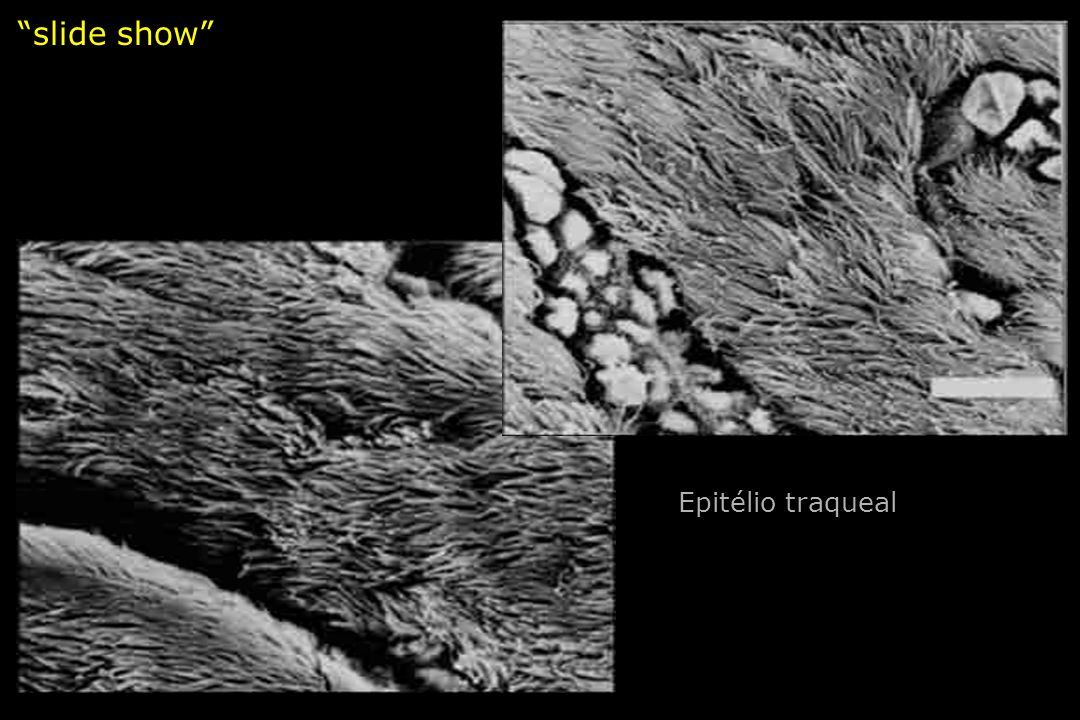 slide show Epitélio traqueal
