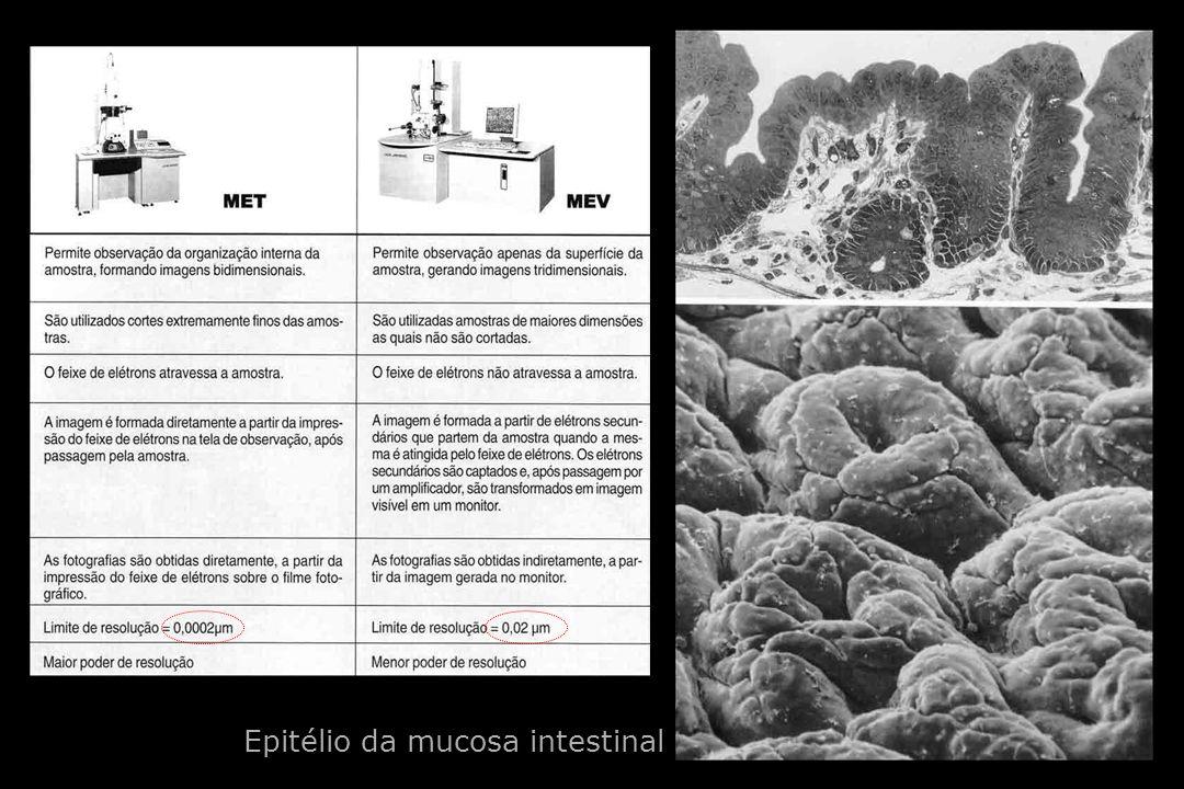 Epitélio da mucosa intestinal