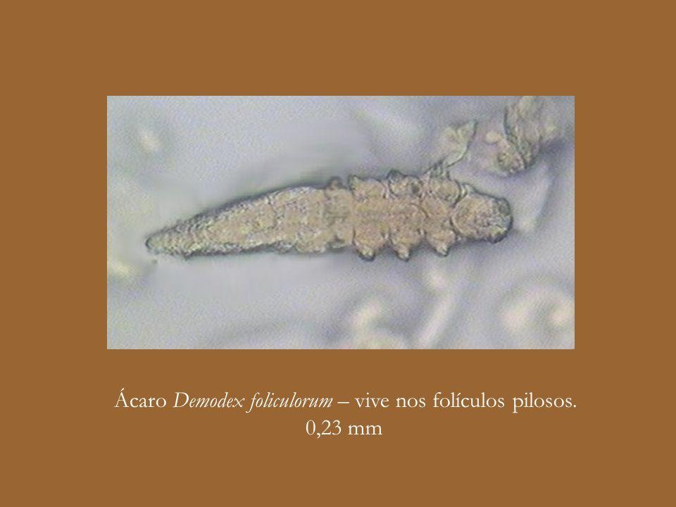 Ácaro Demodex foliculorum – vive nos folículos pilosos. 0,23 mm