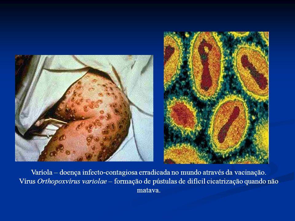 Varíola – doença infecto-contagiosa erradicada no mundo através da vacinação. Vírus Orthopoxvírus variolae – formação de pústulas de difícil cicatriza