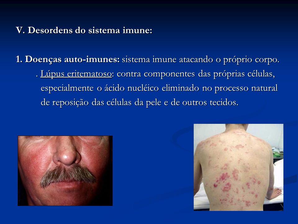 V. Desordens do sistema imune: 1. Doenças auto-imunes: sistema imune atacando o próprio corpo.. Lúpus eritematoso: contra componentes das próprias cél