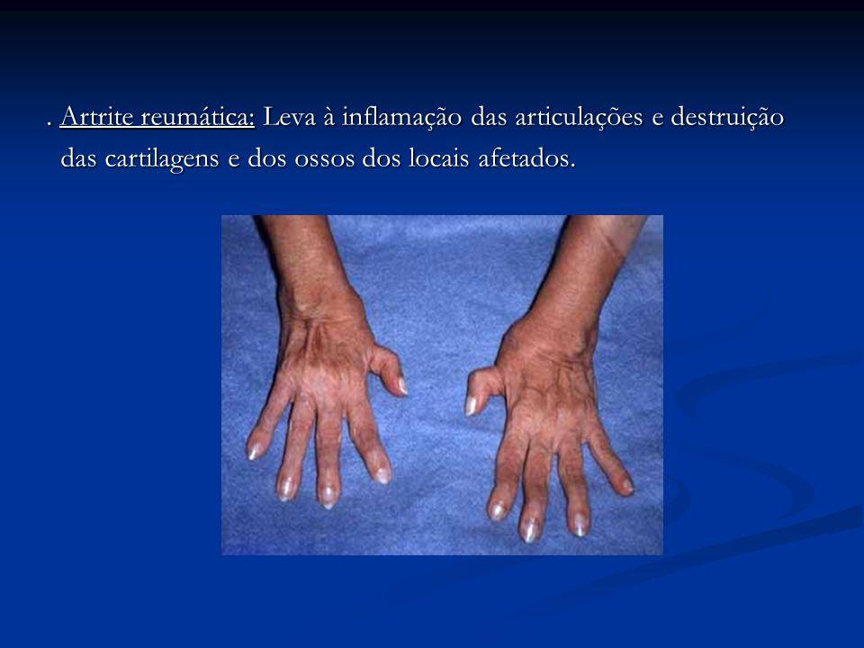 . Artrite reumática: Leva à inflamação das articulações e destruição das cartilagens e dos ossos dos locais afetados. das cartilagens e dos ossos dos