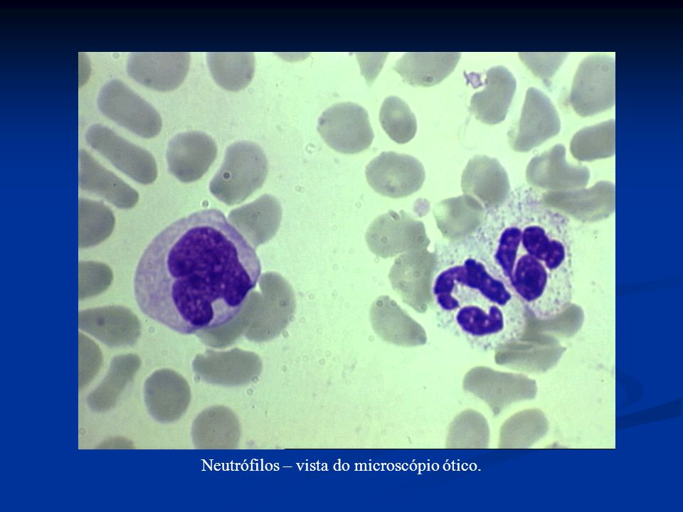 Eosinófilo ao microscópio ótico.