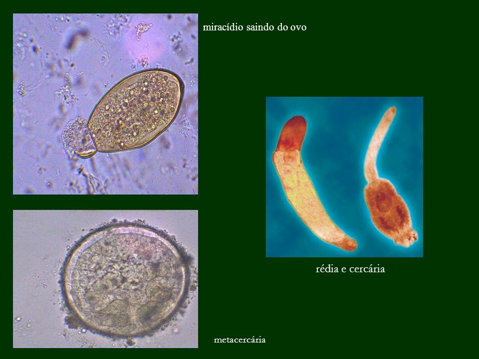 miracídio saindo do ovo rédia e cercária metacercária