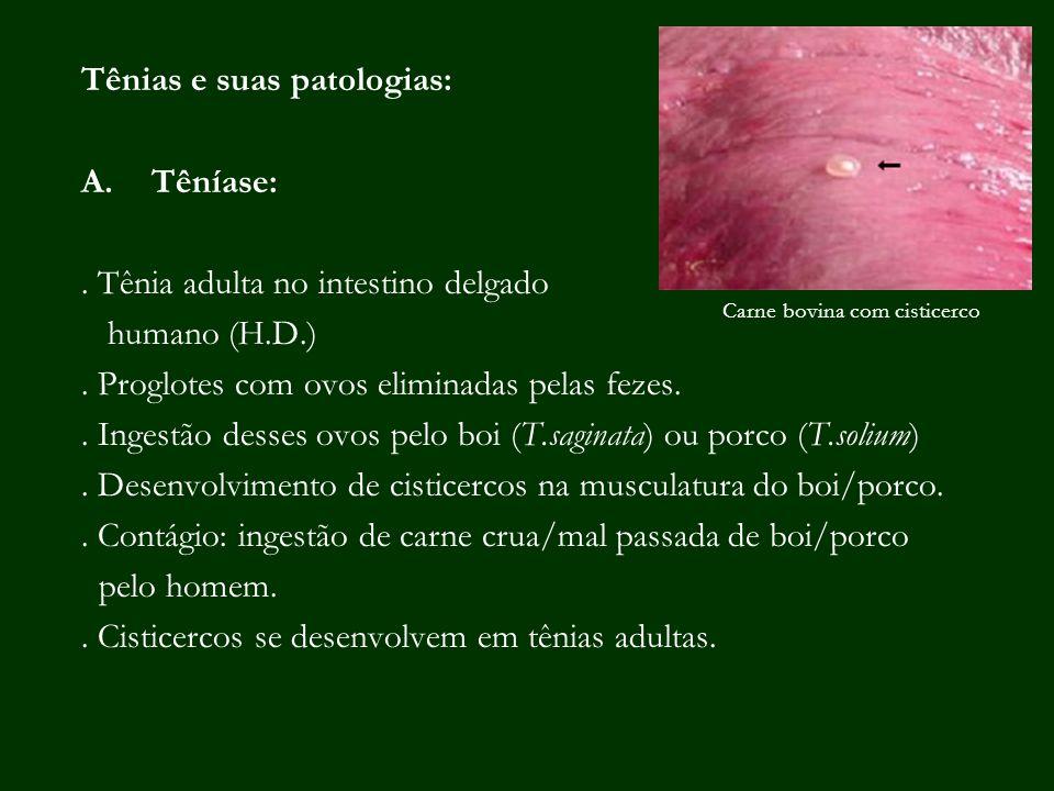 Tênias e suas patologias: A.Têníase:. Tênia adulta no intestino delgado humano (H.D.). Proglotes com ovos eliminadas pelas fezes.. Ingestão desses ovo