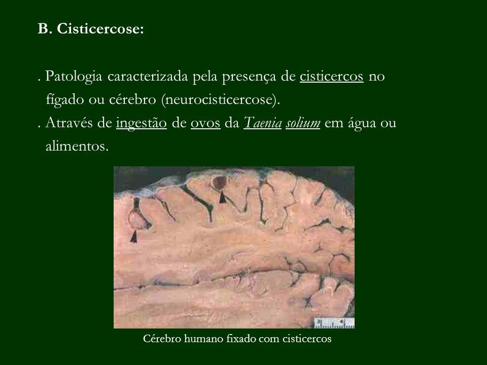 B. Cisticercose:. Patologia caracterizada pela presença de cisticercos no fígado ou cérebro (neurocisticercose).. Através de ingestão de ovos da Taeni