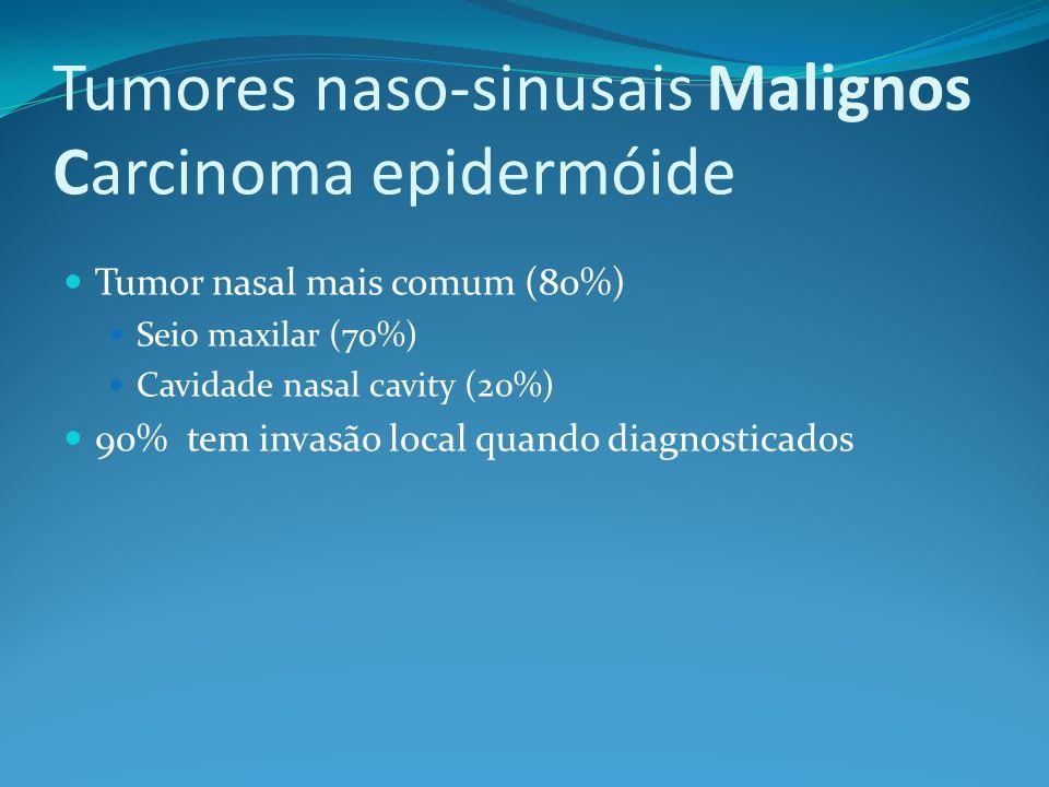 Tumores naso-sinusais Malignos Carcinoma epidermóide Tumor nasal mais comum (80%) Seio maxilar (70%) Cavidade nasal cavity (20%) 90% tem invasão local