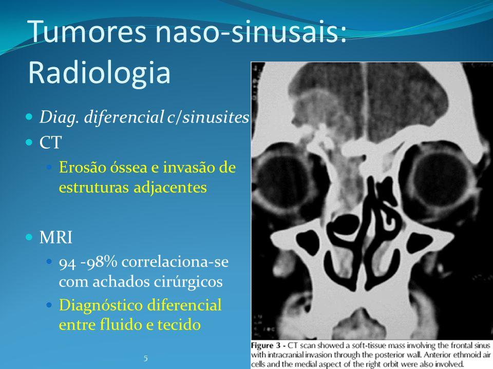 5 Tumores naso-sinusais: Radiologia Diag. diferencial c/sinusites CT Erosão óssea e invasão de estruturas adjacentes MRI 94 -98% correlaciona-se com a