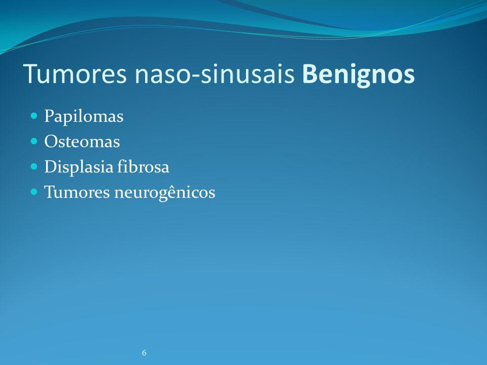 Tu nasais benignos: Papiloma invertido 4% dos tu naso-sinusais Origem na parede nasal lateral Unilateral Degeneração maligna em 2- 13% (média 10%)