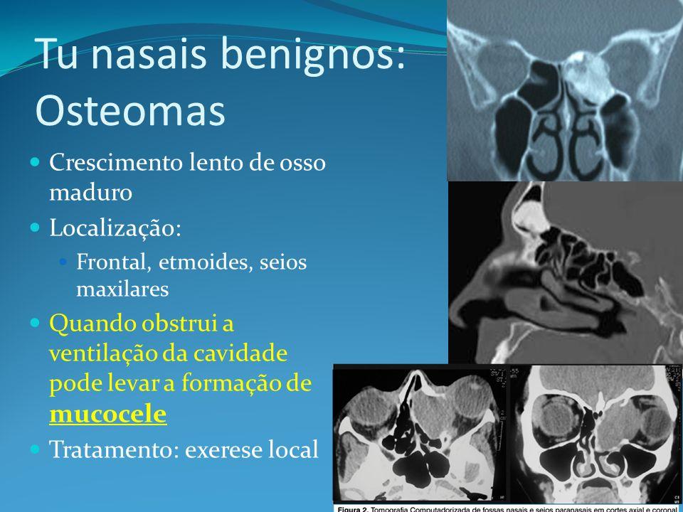 Tu nasais benignos: Osteomas Crescimento lento de osso maduro Localização: Frontal, etmoides, seios maxilares Quando obstrui a ventilação da cavidade