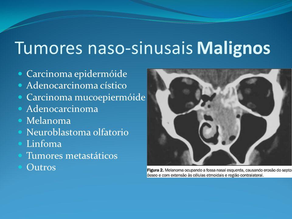 Tumores naso-sinusais Malignos Carcinoma epidermóide Tumor nasal mais comum (80%) Seio maxilar (70%) Cavidade nasal cavity (20%) 90% tem invasão local quando diagnosticados