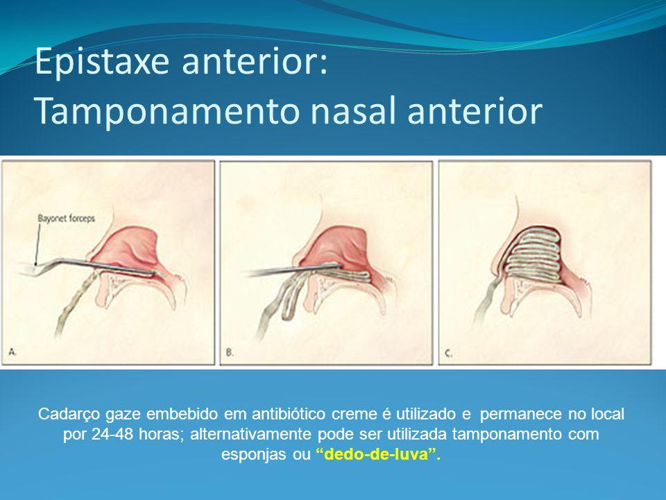 Epistaxe anterior: Tamponamento nasal anterior Cadarço gaze embebido em antibiótico creme é utilizado e permanece no local por 24-48 horas; alternativ
