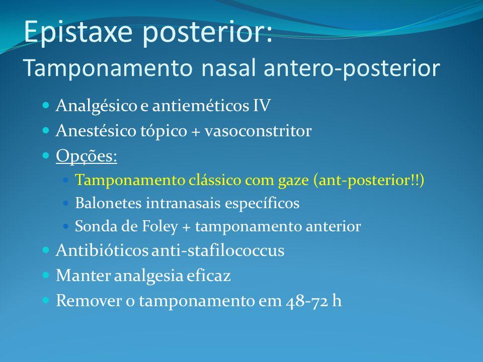 Epistaxe posterior: Tamponamento nasal antero-posterior Analgésico e antieméticos IV Anestésico tópico + vasoconstritor Opções: Tamponamento clássico