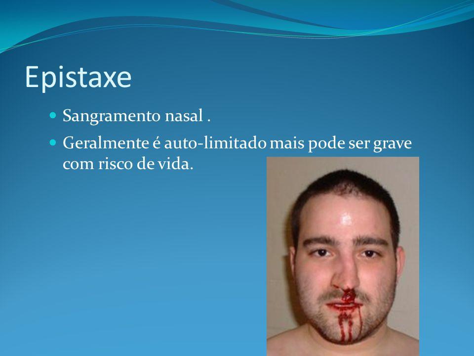 Epistaxe Sangramento nasal. Geralmente é auto-limitado mais pode ser grave com risco de vida.