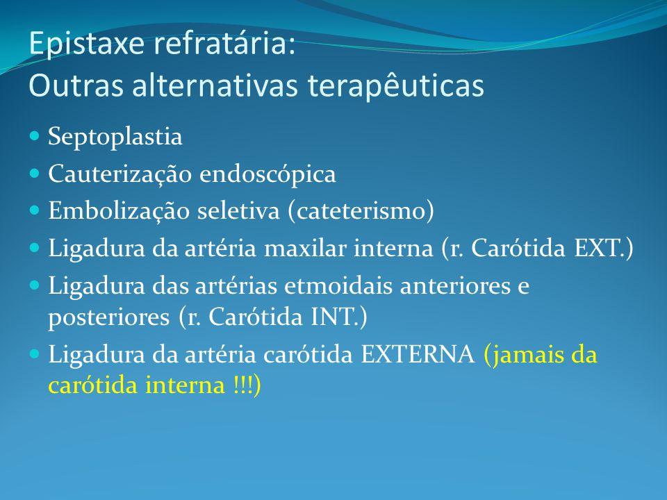 Epistaxe refratária: Outras alternativas terapêuticas Septoplastia Cauterização endoscópica Embolização seletiva (cateterismo) Ligadura da artéria max