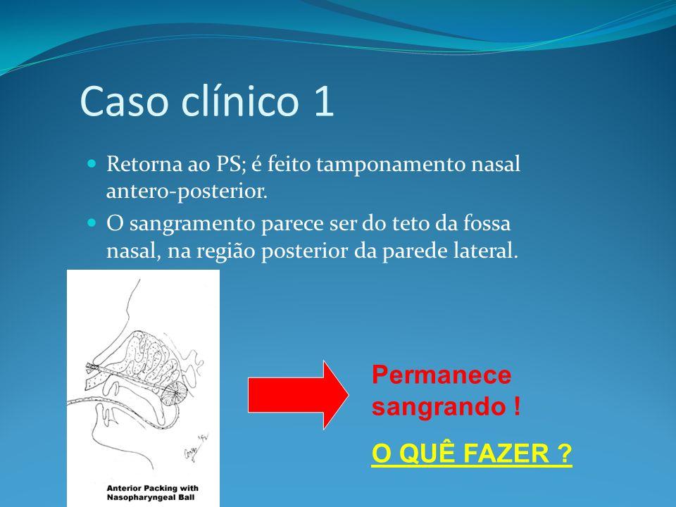 Caso clínico 1 Retorna ao PS; é feito tamponamento nasal antero-posterior. O sangramento parece ser do teto da fossa nasal, na região posterior da par