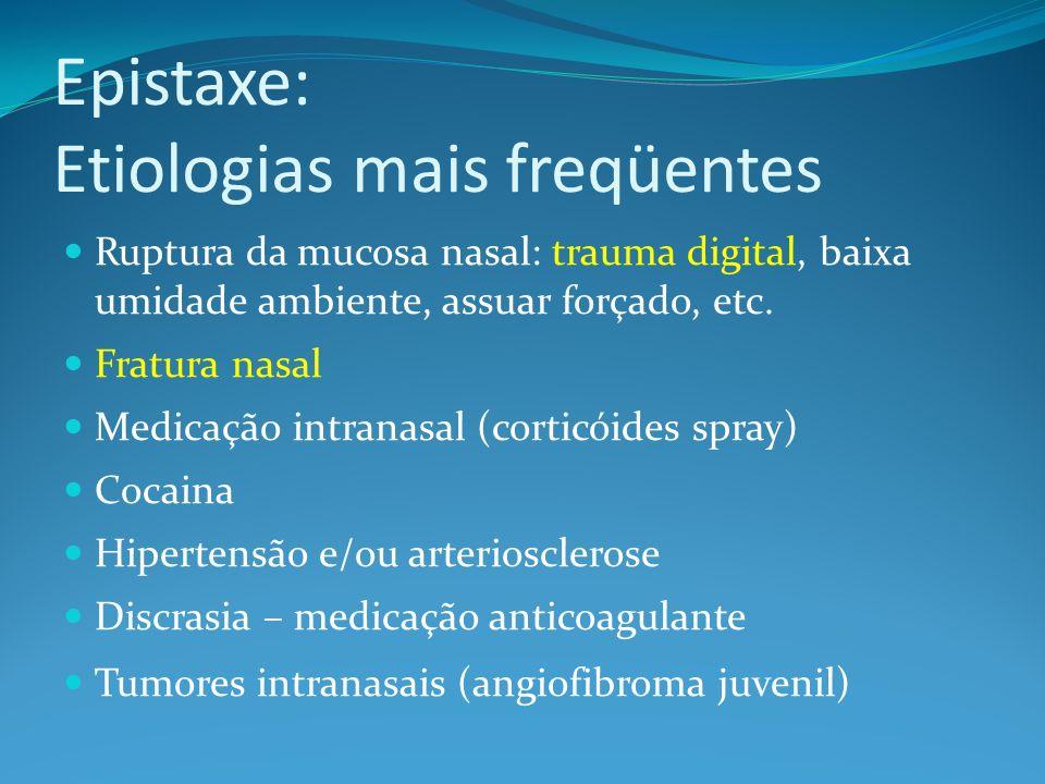 Epistaxe: Etiologias mais freqüentes Ruptura da mucosa nasal: trauma digital, baixa umidade ambiente, assuar forçado, etc. Fratura nasal Medicação int