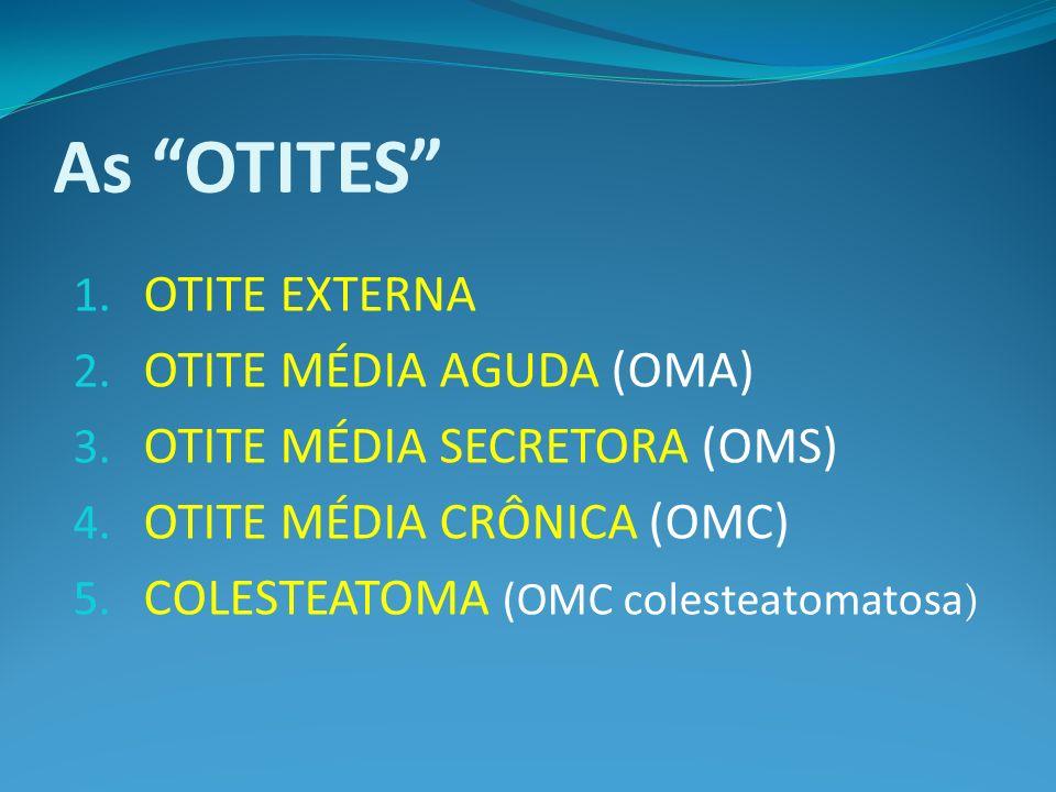 As OTITES 1. OTITE EXTERNA 2. OTITE MÉDIA AGUDA (OMA) 3. OTITE MÉDIA SECRETORA (OMS) 4. OTITE MÉDIA CRÔNICA (OMC) 5. COLESTEATOMA (OMC colesteatomatos