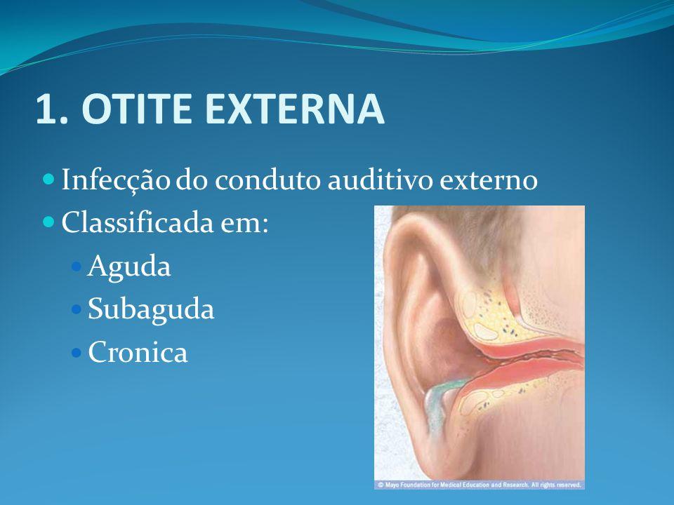 1. OTITE EXTERNA Infecção do conduto auditivo externo Classificada em: Aguda Subaguda Cronica