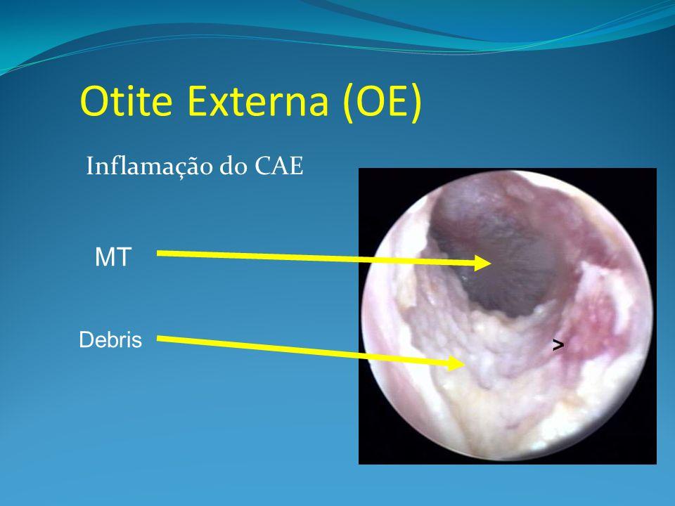 Otite Externa (OE) Inflamação do CAE Debris MT