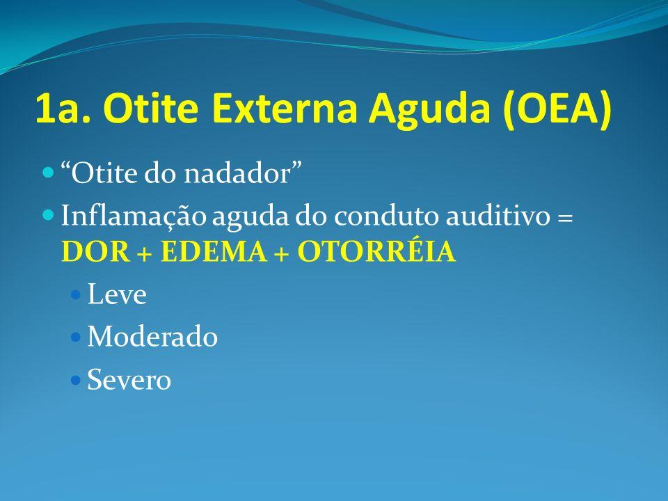 1a. Otite Externa Aguda (OEA) Otite do nadador Inflamação aguda do conduto auditivo = DOR + EDEMA + OTORRÉIA Leve Moderado Severo