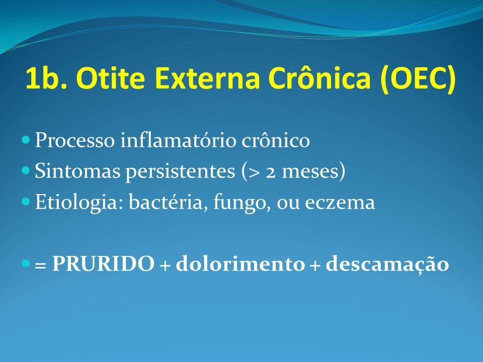 1b. Otite Externa Crônica (OEC) Processo inflamatório crônico Sintomas persistentes (> 2 meses) Etiologia: bactéria, fungo, ou eczema = PRURIDO + dolo