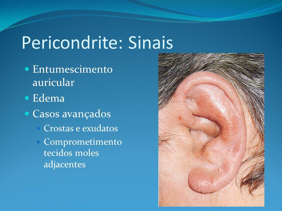Pericondrite: Sinais Entumescimento auricular Edema Casos avançados Crostas e exudatos Comprometimento tecidos moles adjacentes