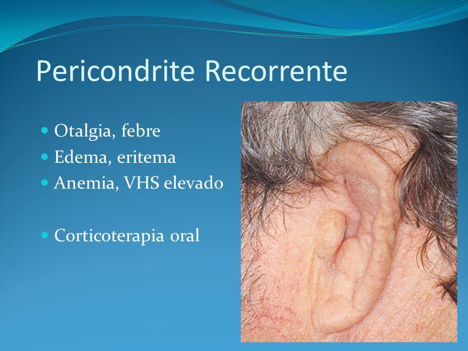 Pericondrite Recorrente Otalgia, febre Edema, eritema Anemia, VHS elevado Corticoterapia oral