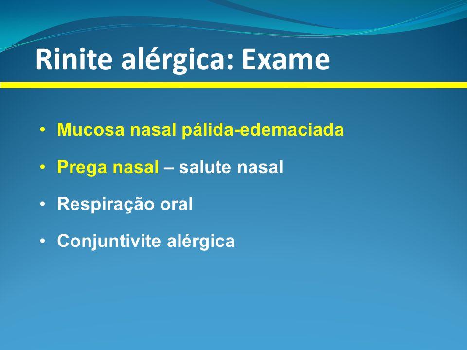 Rinite alérgica: Exame Mucosa nasal pálida-edemaciada Prega nasal – salute nasal Respiração oral Conjuntivite alérgica