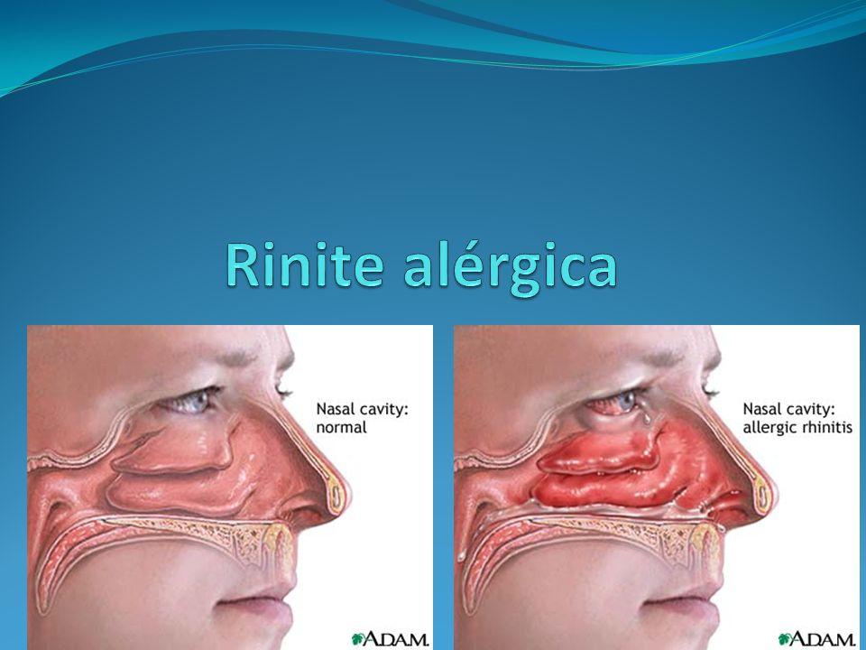 Rinite Alérgica É enfermidade sintomática (coriza, espirros, congestão e prurido nasal) induzida por exposição a alergeno e reação inflamatória mediada por IgE na mucosa nasal.