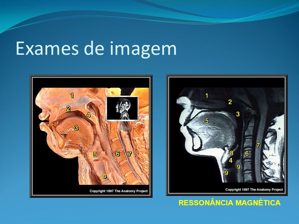 Exames de imagem RESSONÂNCIA MAGNÉTICA